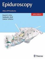 Epiduroscopy: Atlas of Procedures
