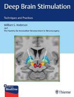 Deep Brain Stimulation: Techniques and Practices