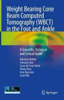 Weight Bearing Cone Beam Computed Tomography (WBCT) in the Foot and Ankle: A Scientific, Technical and Clinical Guide 1st ed. 2020